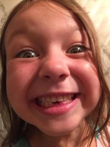 2 teeth